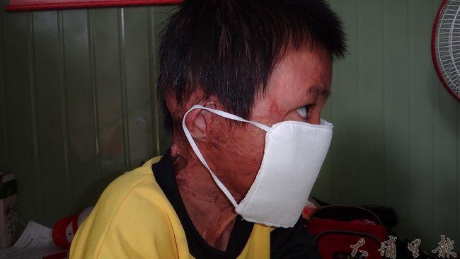 法治部落馬小弟弟在鐵皮屋大火中倖存,臉部及脖子也遭到烈火侵襲,需長期復健。(諾爾攝)