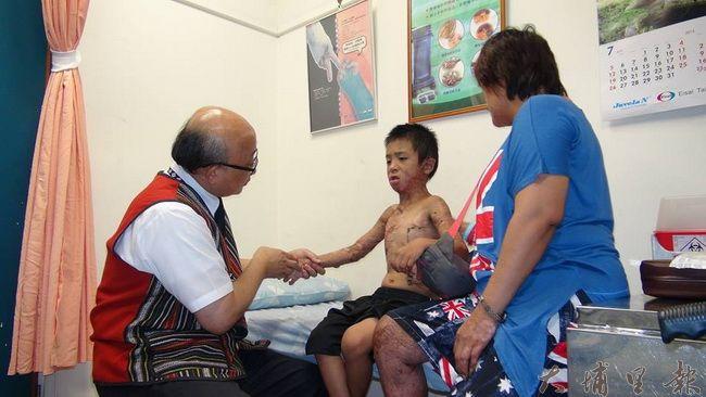 埔基醫院院長陳恒常(左)仔細檢視馬家燒傷弟弟的傷口,過程中小弟弟不斷喊痛喊癢。(諾爾攝)