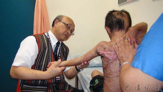 埔基醫院院長陳恒常(左)檢視馬家燒傷弟弟的傷口,建議家長就近治療。(諾爾攝)