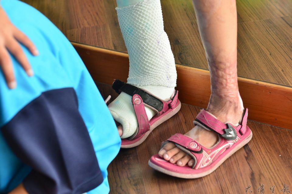 武界部落馬家燒傷姊弟的姊姊原本右後腳跟無法著地,手術後已經較能正常走路。(柏原祥攝)