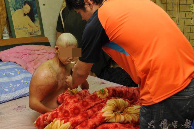 恩恩因罹患骨癌,右肩腫脹如足球大,化療因素頭髮掉光,他勉強起床,讓爸爸餵食流質。(柏原祥攝)